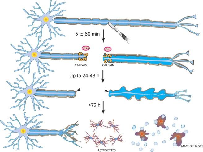 évolution neuro immunologique d'un nerf lésé