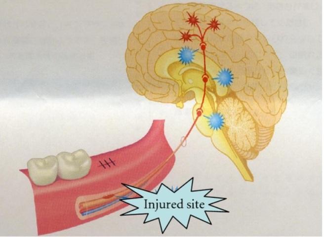 centralisation de la douleur lors de lésion du nerf trijumeau pendant chirurgie implanter