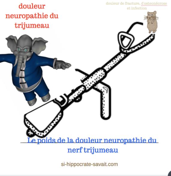 le-poids-de-la-neuropathie-du-trijumeau