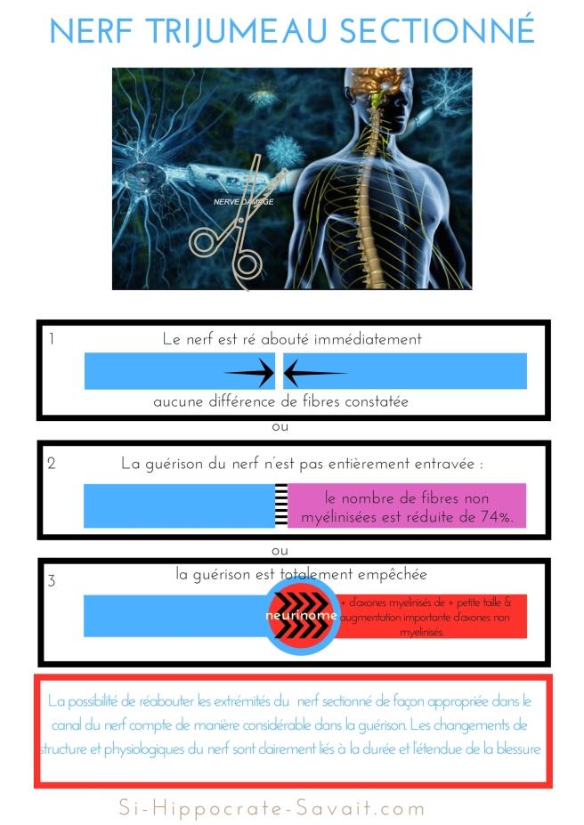 nerf trijumeau sectionné